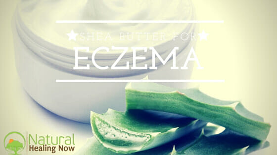 Discover The Many Benefits of Shea Butter For Eczema