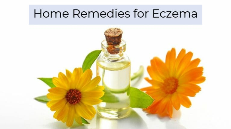What are the different eczema home remedies?